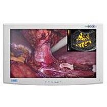 Para la venta NDS Radiance 26 G2 monitor de pantalla quirúrgico estándar