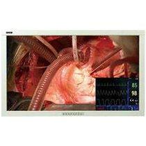 Para la Venta un monitor para quirúrgico de WIDE SD4200CW