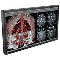 Para la Venta un monitor para quirúrgico de EIZO RadiForce LX470W