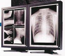 Para la venta 3MP Eizo Radiforce FC-2091 Medical Display (Reacondicionado)