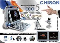 El Mejor Ultrasonido Portátil Color Doppler  ECO5