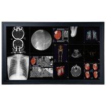 58 pulgadas Optik Ver DC5811 8MP QMDL Pantallas médicas para la venta