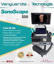 Ultrasonido SonoScape S50