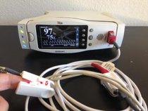 Masimo Radical 7 Oxímetro de pulso de extracción  SpO2 Monitor de Paciente Médico con cables
