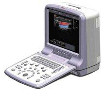 Ultrasonido Color Doppler VERTU-3