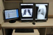 Monitor para Imagenologia RX, Ultrasonido, Mamografia, etc