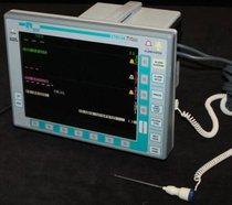 Monitor de Signos Vitales Escort Prism
