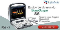 Ultrasonido 4D Sonoscape