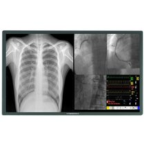 58 Inch HybridPixx 8MP QFHD Medical Display