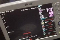 Vendo Monitor paramétrico Bionet BM5
