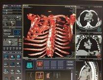 Especialistas venta e importacion de Equipo Radiologico Usg Tac RX y Arco C