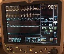 Monitor de Signos Vitales GE Dash 5000