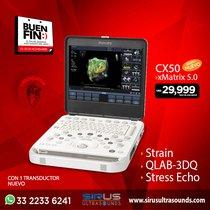 Oferta del Buen Fin en Ultrasonido PHILIPS CX50 5.0 Equipo cardiovascular nuevo
