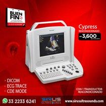 Oferta del Buen Fin en Ultrasonido Portatil Acuson Cypress reacondicionado