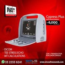 Oferta del Buen Fin en Ultrasonido Portatil Acuson Cypress Plus reacondicionado